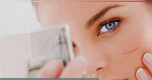 آموزش محو کردن جای زخم از صورت با آرایش +عکس