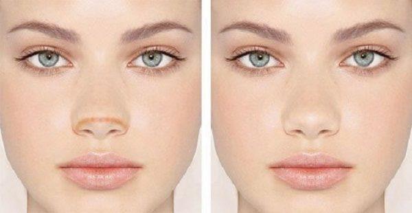 روش لاغرکردن بینی پهن با آرایش + راهنمای تصویری
