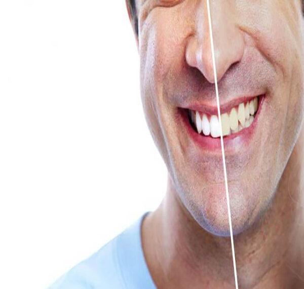 دلیل زرد شدن دندان ها