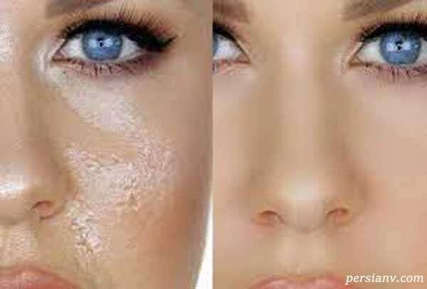 محصولات ممنوع برای پوست صورت