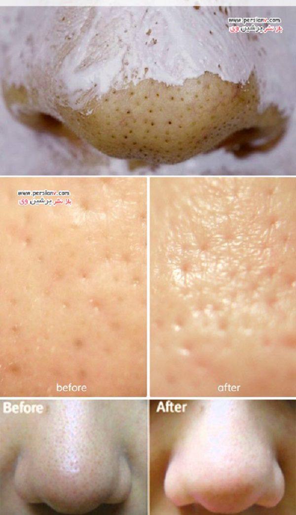 لکه های قهوه ای روی بینی