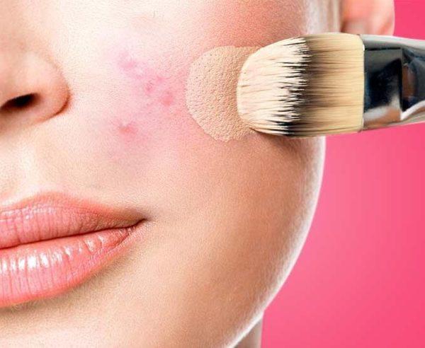 آیا استفاده از لوازم آرایش باعث جوش صورت می شود؟