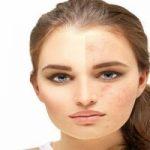 آموزش چند ماسک خانگی فوق العاده برای لطافت پوست و محو کردن لک ها