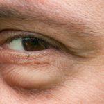 پف زیر چشم مردان چگونه درمان می شود؟