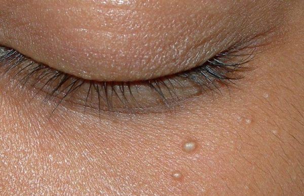 دانه های ریز پایین چشم چگونه درمان می شود؟