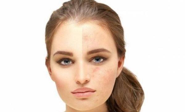 از بین بردن لک های پوستی
