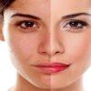 پوست صورت وقتی که دورنگ می شود چه باید کرد؟