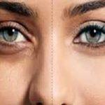 سیاهی دور چشم تان را به راحتی با این مواد غذایی ساده از بین ببرید+تصاویر