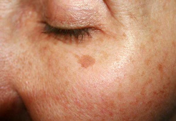 لکه های تیره روی پوست را با کمک این راهکارهای خانگی برطرف کنید