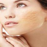 منافذ پوست را با راحت ترین روشهای خانگی درمان کنید + تصاویر