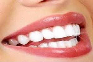 دندان سفید براق با روش های بسیار ساده + تصاویر