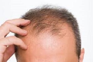 علل و راههای درمان ریزش مو چیست + تصاویر