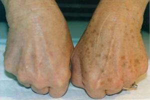 لکه های قهوه ای پوست و درمان های خانگی + تصاویر