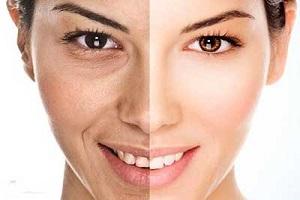 چین و چروکهای پوستی را با کمک این ماسک ارگانیک کاهش دهید