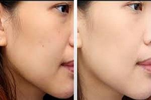 روش های موثر و کاربردی برای روشن کردن پوست