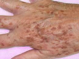 پیری پوست دست