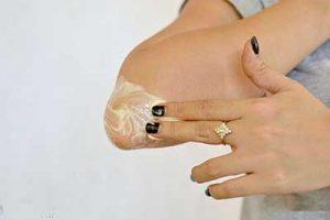 ۱۰ روش درمانهای خانگی برای رفع تیرگی دست و پا