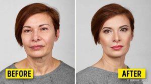 جوان سازی و زیبایی صورت