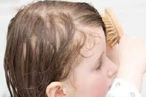 درمان کم پشتی موی سر