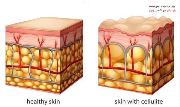 درمان قطعی سلولیت