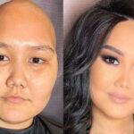 عکس قبل و بعد میکاپ روی صورت های آسیب دیده