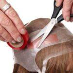 ماندگاری پروتز مو چقدر است؟